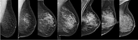 breastdensity-1.png
