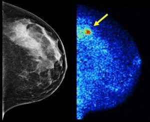 informwomen significance of ultrasound with mammogram being dense
