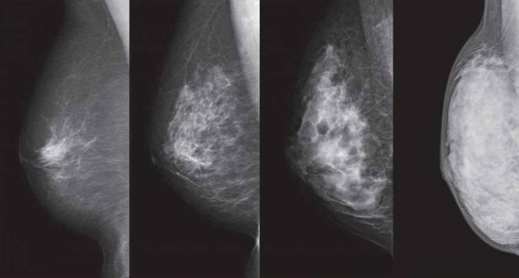 n-breastcancer-a-20171026-870x467